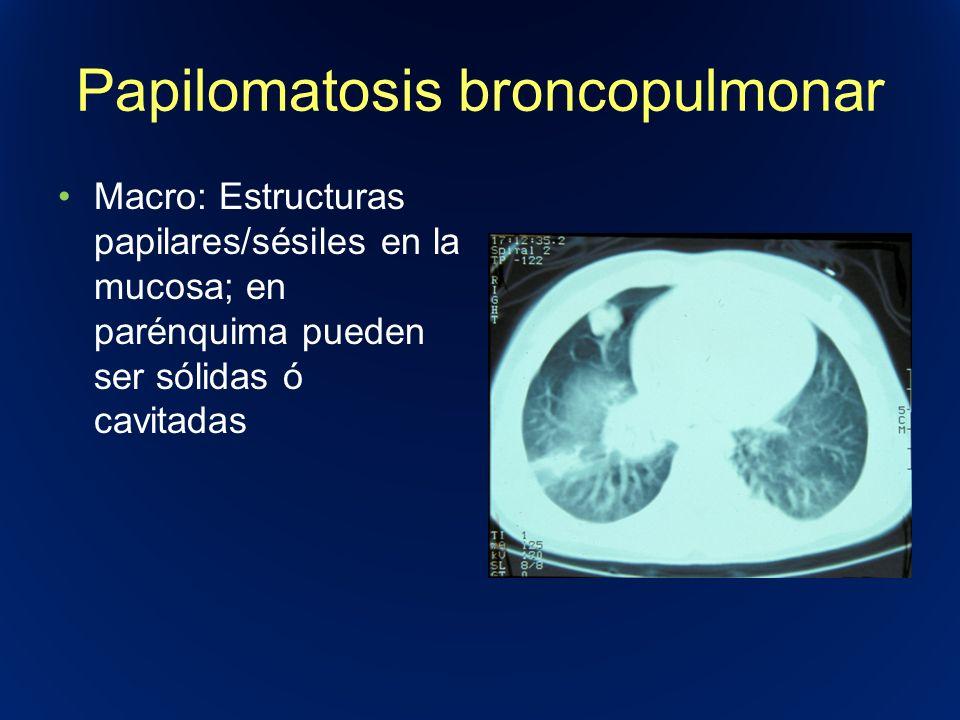 Papilomatosis broncopulmonar Macro: Estructuras papilares/sésiles en la mucosa; en parénquima pueden ser sólidas ó cavitadas