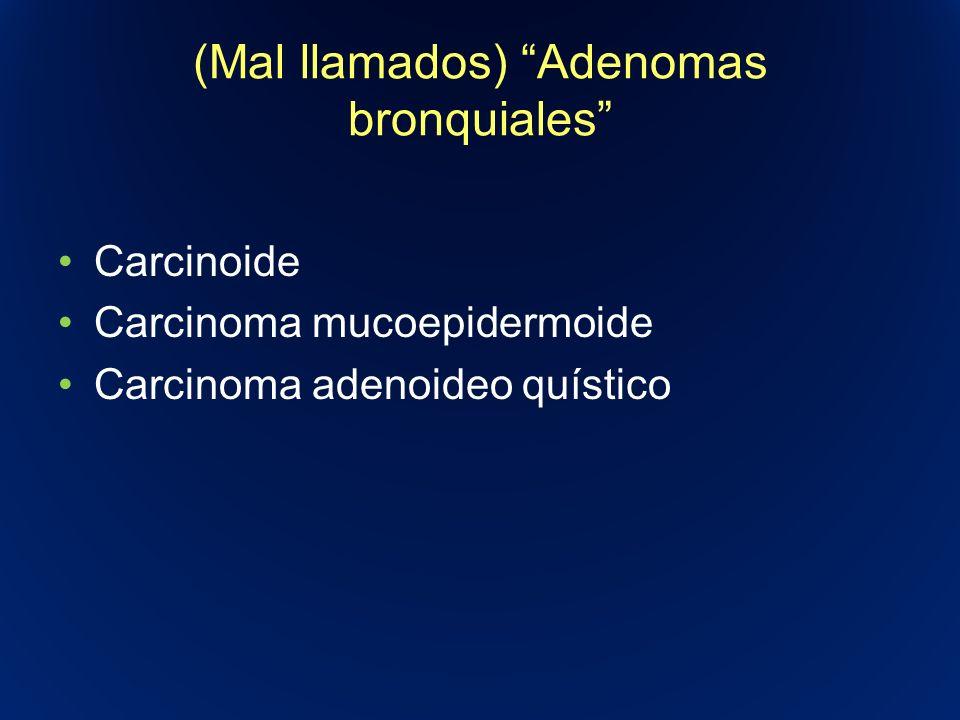(Mal llamados) Adenomas bronquiales Carcinoide Carcinoma mucoepidermoide Carcinoma adenoideo quístico