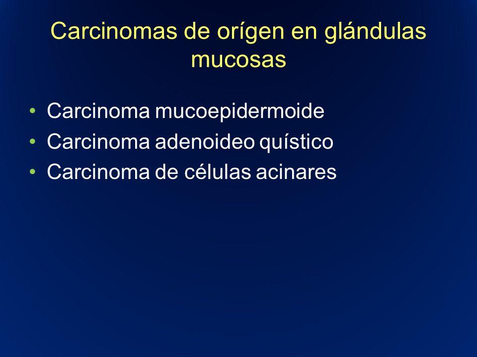 Carcinomas de orígen en glándulas mucosas Carcinoma mucoepidermoide Carcinoma adenoideo quístico Carcinoma de células acinares