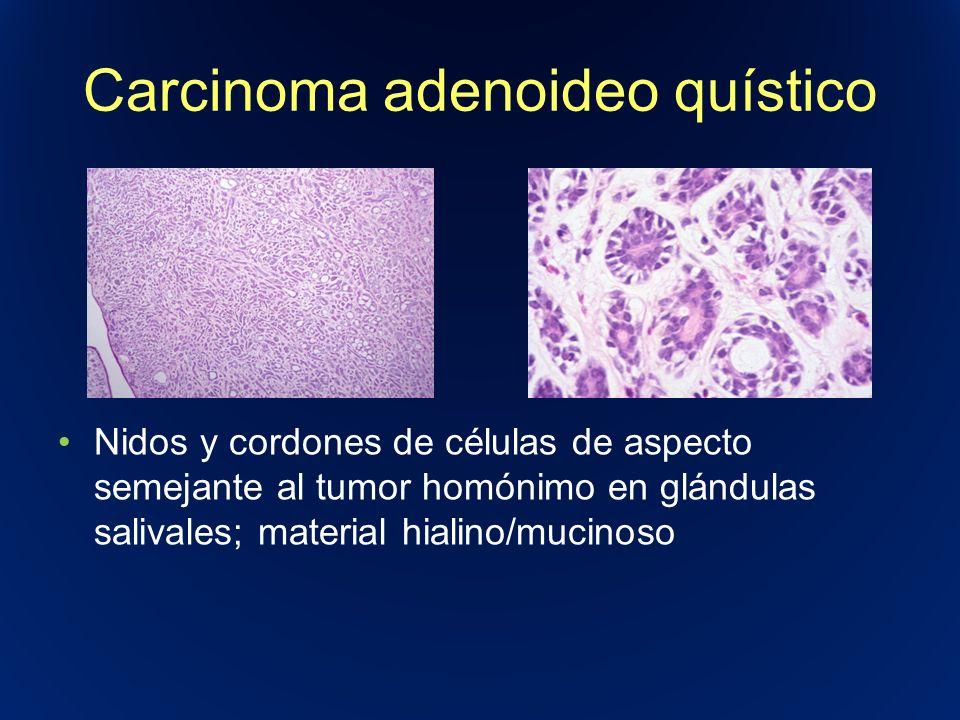 Carcinoma adenoideo quístico Nidos y cordones de células de aspecto semejante al tumor homónimo en glándulas salivales; material hialino/mucinoso