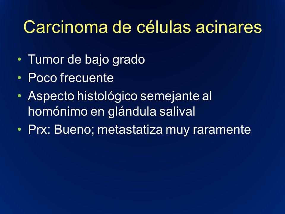 Carcinoma de células acinares Tumor de bajo grado Poco frecuente Aspecto histológico semejante al homónimo en glándula salival Prx: Bueno; metastatiza