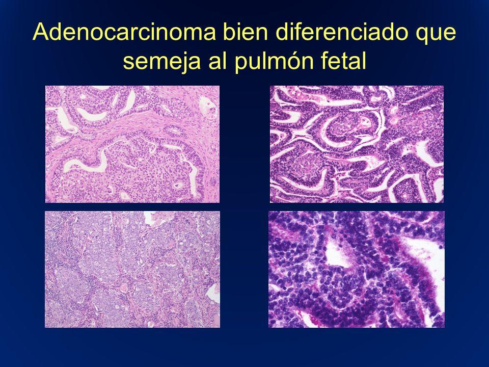 Adenocarcinoma bien diferenciado que semeja al pulmón fetal