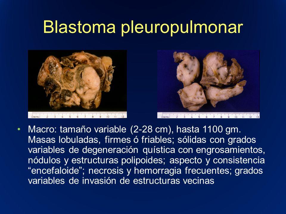 Blastoma pleuropulmonar Macro: tamaño variable (2-28 cm), hasta 1100 gm. Masas lobuladas, firmes ó friables; sólidas con grados variables de degenerac