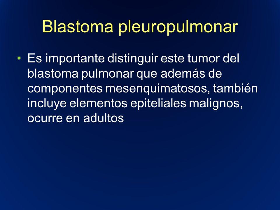 Blastoma pleuropulmonar Es importante distinguir este tumor del blastoma pulmonar que además de componentes mesenquimatosos, también incluye elementos