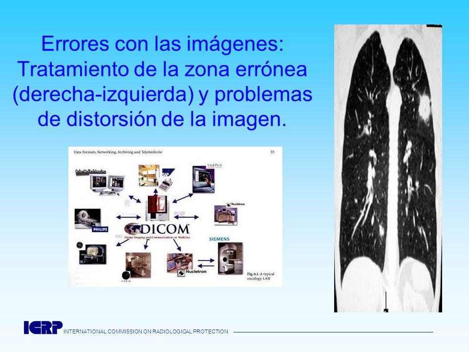 INTERNATIONAL COMMISSION ON RADIOLOGICAL PROTECTION Errores con las imágenes: Tratamiento de la zona errónea (derecha-izquierda) y problemas de distor
