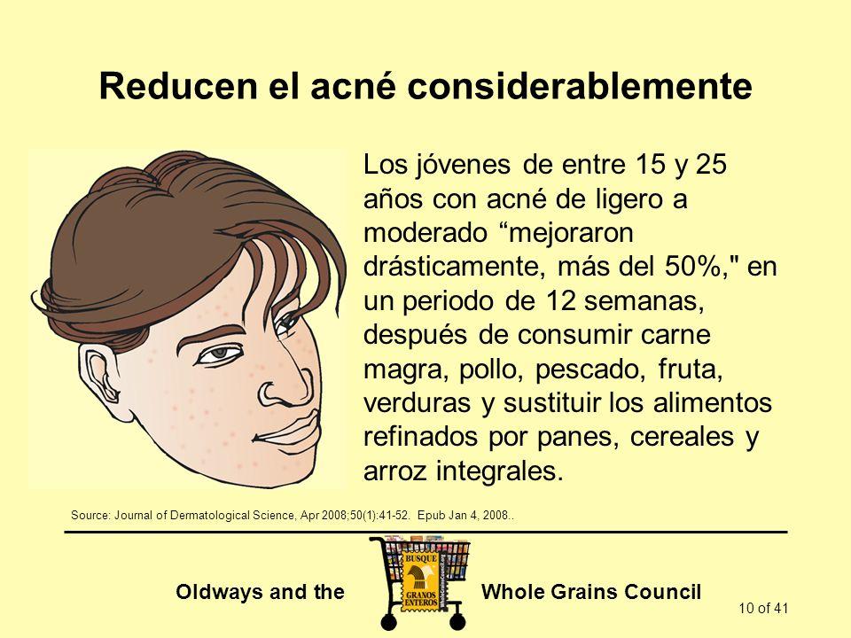 Oldways and the Whole Grains Council 10 of 41 Reducen el acné considerablemente Los jóvenes de entre 15 y 25 años con acné de ligero a moderado mejora