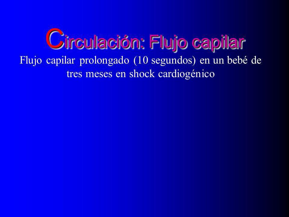 C irculación: Flujo capilar Flujo capilar prolongado (10 segundos) en un bebé de tres meses en shock cardiogénico