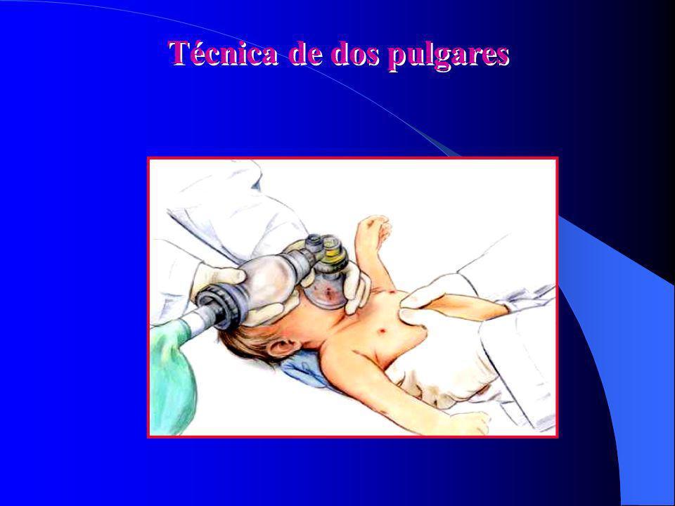 Máscara-Bomba Presión sobre el Cricoide ayuda a reducir el aire gástrico Cricoid cartilage Occluded esophagus Cervical vertebrae