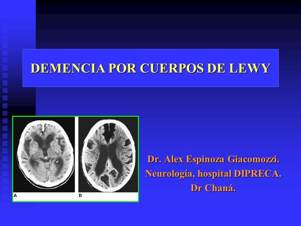 DEMENCIA POR CUERPOS DE LEWY Dr. Alex Espinoza Giacomozzi. Neurología, hospital DIPRECA. Dr Chaná.