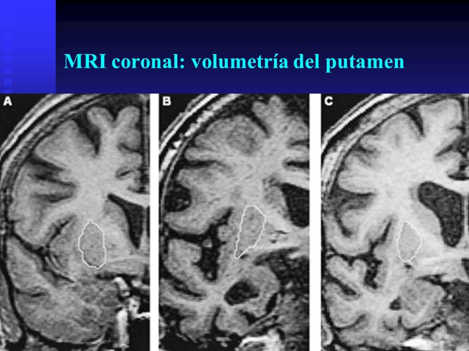 MRI coronal: volumetría del putamen