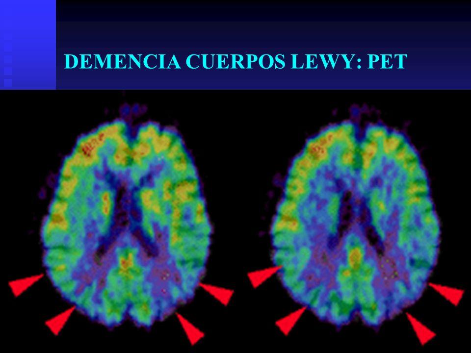 DEMENCIA CUERPOS LEWY: PET