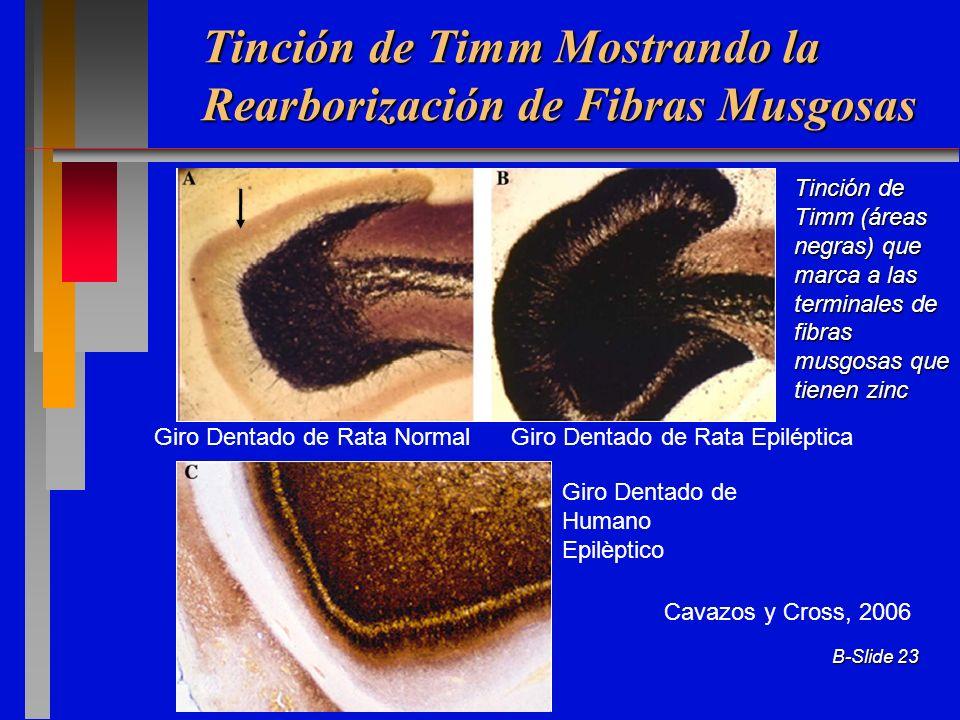 B-Slide 23 Giro Dentado de Rata Normal Giro Dentado de Rata Epiléptica Giro Dentado de Humano Epilèptico Cavazos y Cross, 2006 Tinción de Timm Mostran