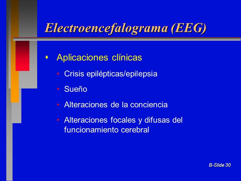 B-Slide 30 Electroencefalograma (EEG) Aplicaciones clínicas Crisis epilépticas/epilepsia Sueño Alteraciones de la conciencia Alteraciones focales y di