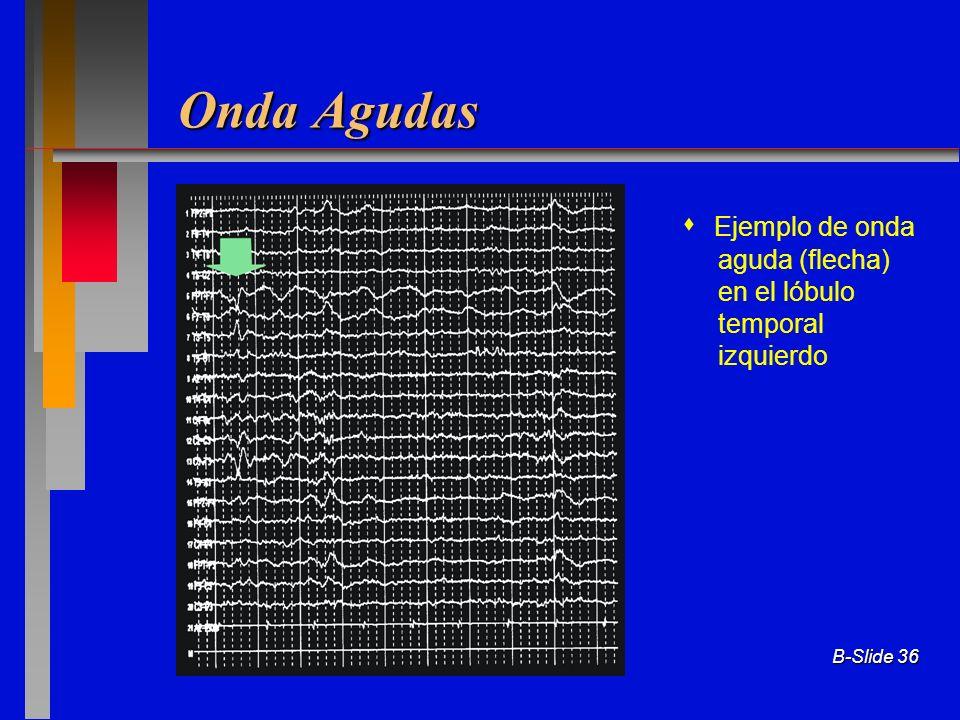 B-Slide 36 Onda Agudas Ejemplo de onda aguda (flecha) en el lóbulo temporal izquierdo