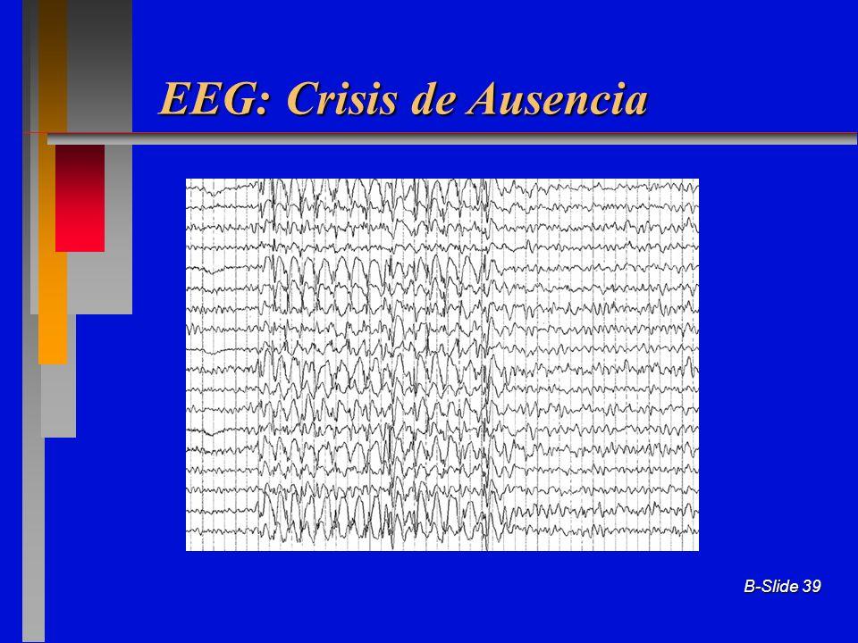B-Slide 39 EEG: Crisis de Ausencia