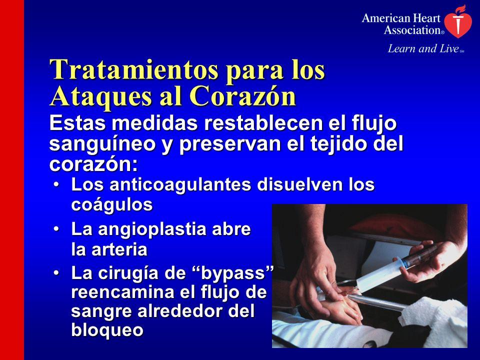 Tratamientos para los Ataques al Corazón Estas medidas restablecen el flujo sanguíneo y preservan el tejido del corazón: Los anticoagulantes disuelven