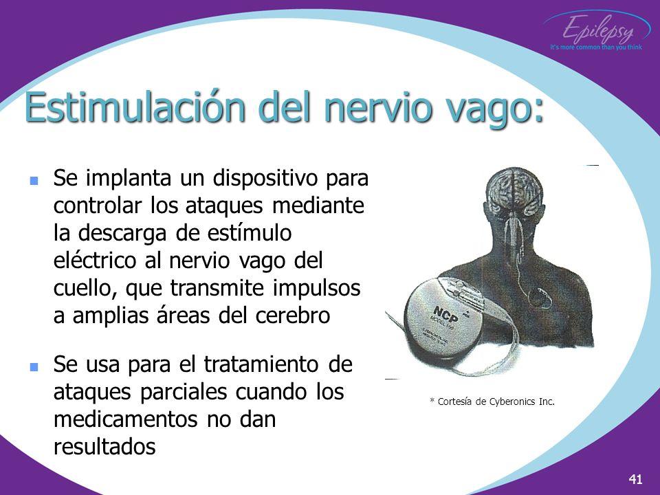 41 Se implanta un dispositivo para controlar los ataques mediante la descarga de estímulo eléctrico al nervio vago del cuello, que transmite impulsos