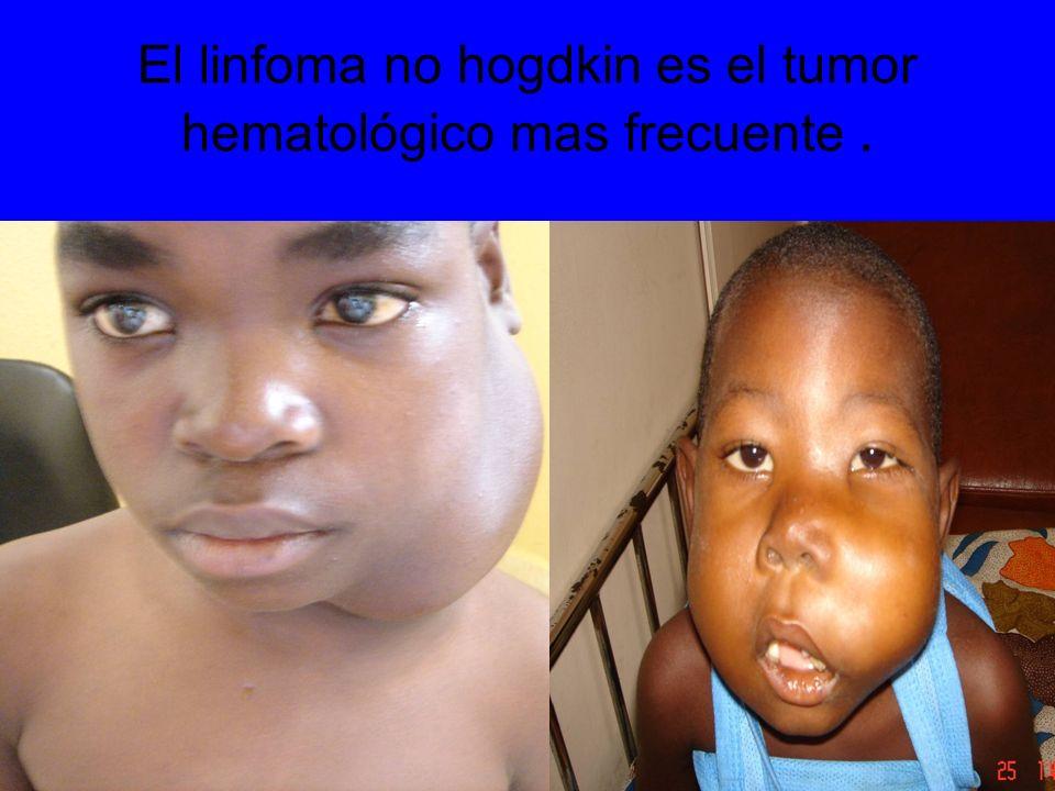 El linfoma no hogdkin es el tumor hematológico mas frecuente.
