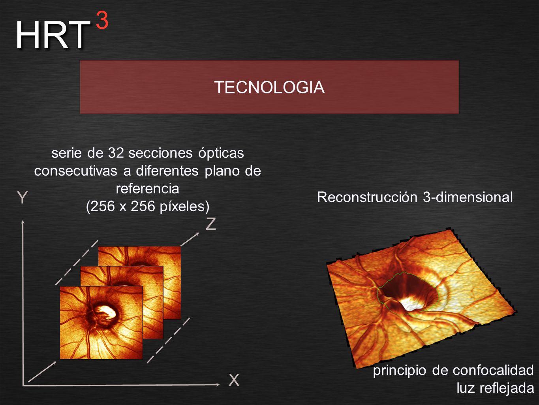 X Y Z principio de confocalidad luz reflejada HRT 3 TECNOLOGIA serie de 32 secciones ópticas consecutivas a diferentes plano de referencia (256 x 256
