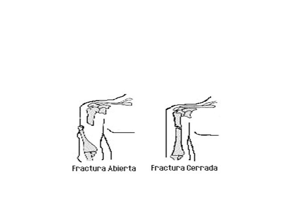 3.- TRAUMATISMO CRANEOENCEFALICO. Cuidado con salida de líquido por el oído!!! Se suelen producir: –Contusiones con dolor e hinchazón. –Heridas en cue