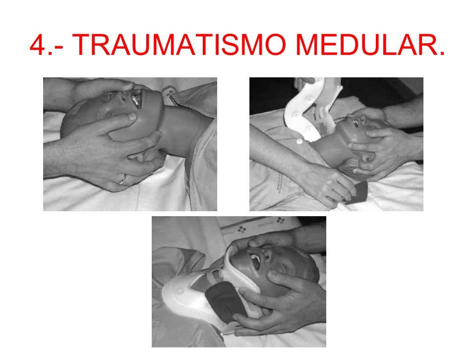 4.- TRAUMATISMO MEDULAR. –1.- Mantener tracción mandibular en todo momento. –2.- Deslizar la solapa por debajo del cuello y acercar la parte superior