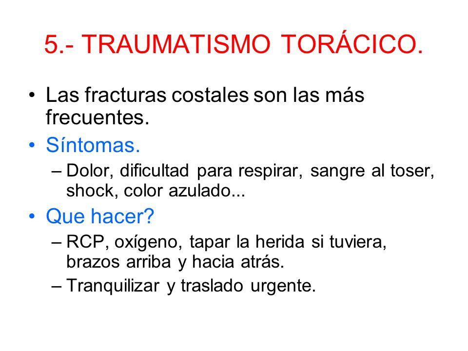 4.- TRAUMATISMO MEDULAR. –Movilización en bloque con 3 rescatadores. Método de la cuchara.