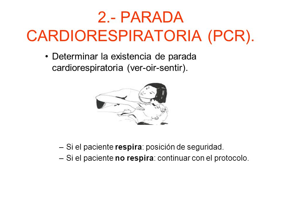 2.- PARADA CARDIORESPIATORIA (PCR). Apertura y mantenimiento de las vías aéreas. Verificar presencia de objetos extraños.