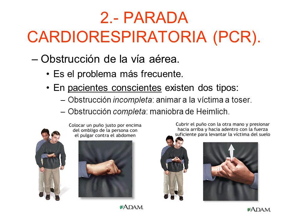 2.- PARADA CARDIORESPIRATORIA (PCR). Alternar insuflaciones y compresiones. –Ritmo: 2 insuflaciones por 30 compresiones. Seguir con el ritmo hasta la