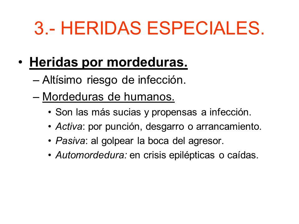3.- HERIDAS ESPECIALES. Heridas por asta de toro. –Produce desgarros y heridas con dos o más trayectorias. –Tratamiento: Compresión de la raíz y estab