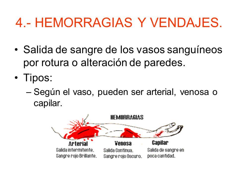 3.- HERIDAS ESPECIALES. –Heridas en ojos. Pedir ayuda. Lavado con suero. Con el paciente semisentado tapar los ojos con gasas estériles. NUNCA RETIRAR