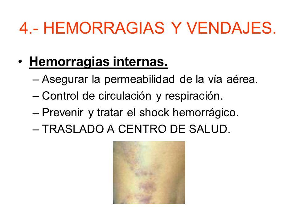 4.- HEMORRAGIAS Y VENDAJES. –NUNCA PONER TORNIQUETE EXCEPTO: Si corre peligro la vida de la víctima. Si hay amputación. Prestar atención a la gangrena