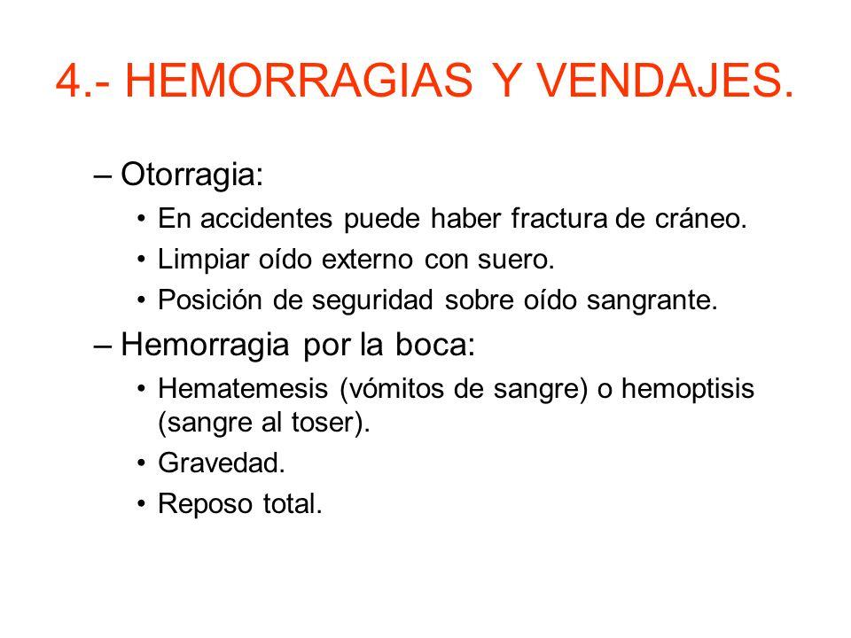 4.- HEMORRAGIAS Y VENDAJES. H. exteriorizadas: –Epistáxis: Espontánea. Leve pinzado con los dedos. Después de 10 minutos atención médica. Inclinado ha