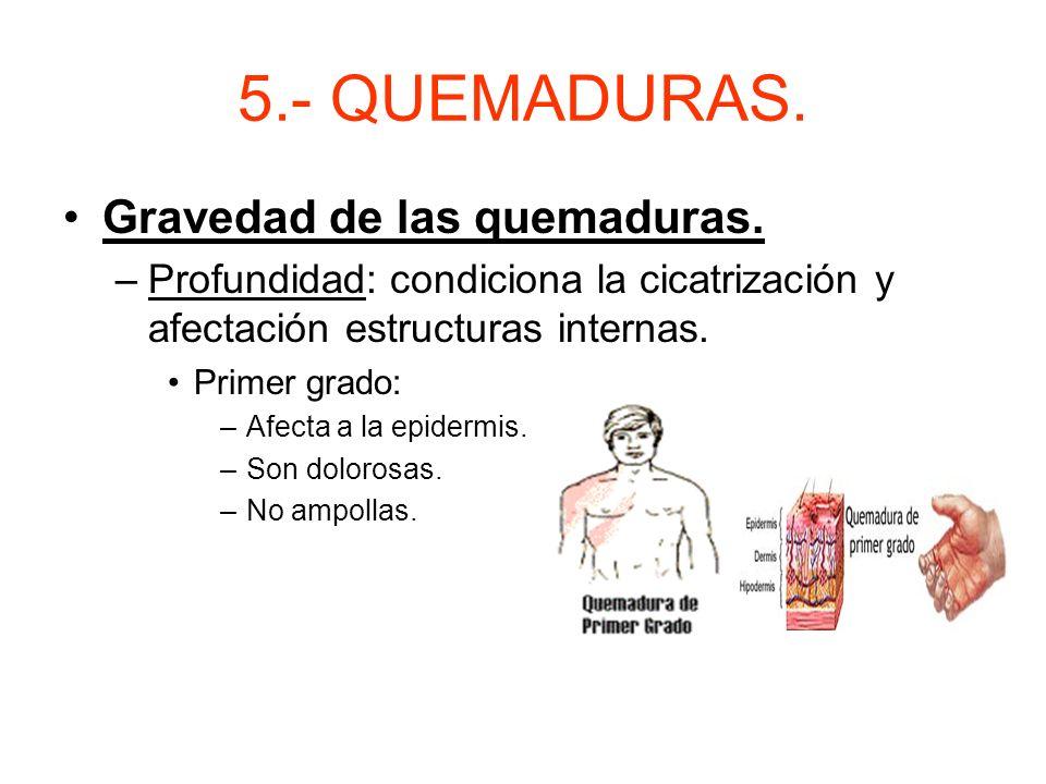 5.- QUEMADURAS. Actuación: –Alejar a la víctima de la fuente de calor. –Permeabilidad de las vías aéreas. –Asegurar ventilación y administrar oxígeno.