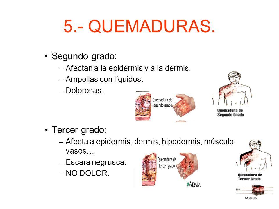 5.- QUEMADURAS. Gravedad de las quemaduras. –Profundidad: condiciona la cicatrización y afectación estructuras internas. Primer grado: –Afecta a la ep