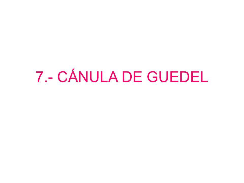 Maniobra de gancho. 6.- MANIOBRA DE HEIMLICH.