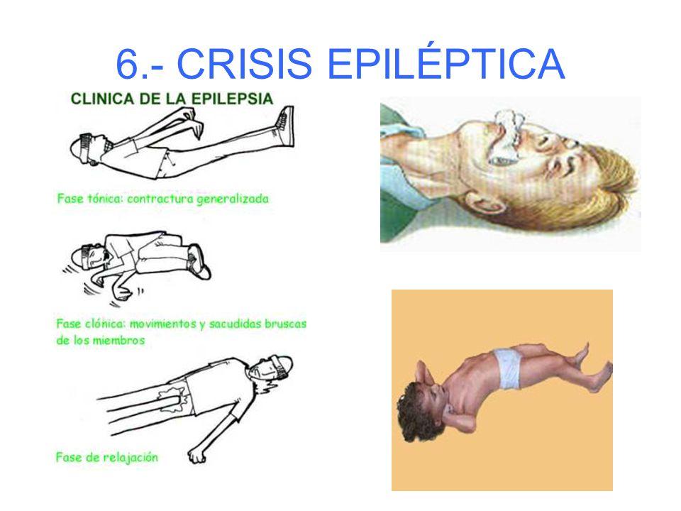 6.- CRISIS EPILÉPTICA Fases: 1.- La victima grita, pierde conocimiento y cae al suelo. 2.- Contracción muscular intensa (paro respiratorio). 3.- Sacud