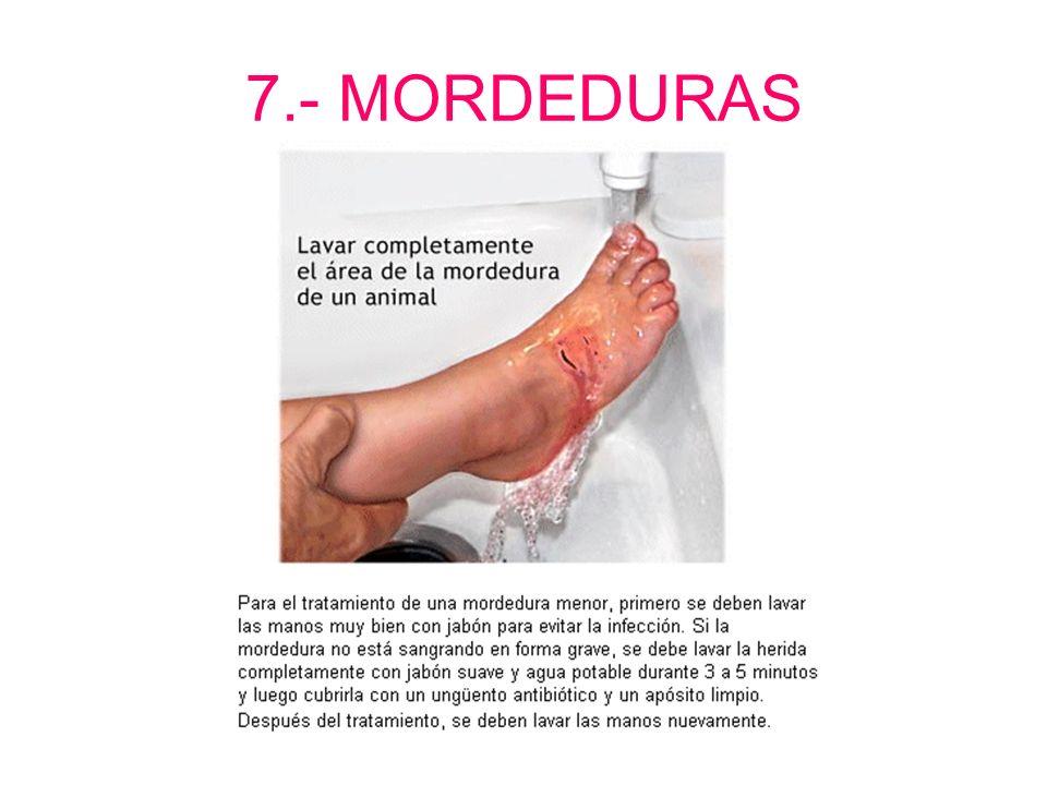 7.- MORDEDURAS (Animales domésticos) Producen: - Infección local y general (Tétanos) - Pueden dar lugar a la rabia (mortal) Que hacer: - Limpiar con a