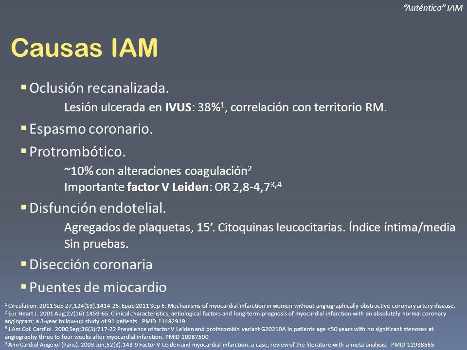 Causas IAM Oclusión recanalizada. Lesión ulcerada en IVUS: 38% 1, correlación con territorio RM. Espasmo coronario. Protrombótico. ~10% con alteracion