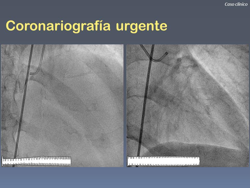 Coronariografía urgente Caso clínico