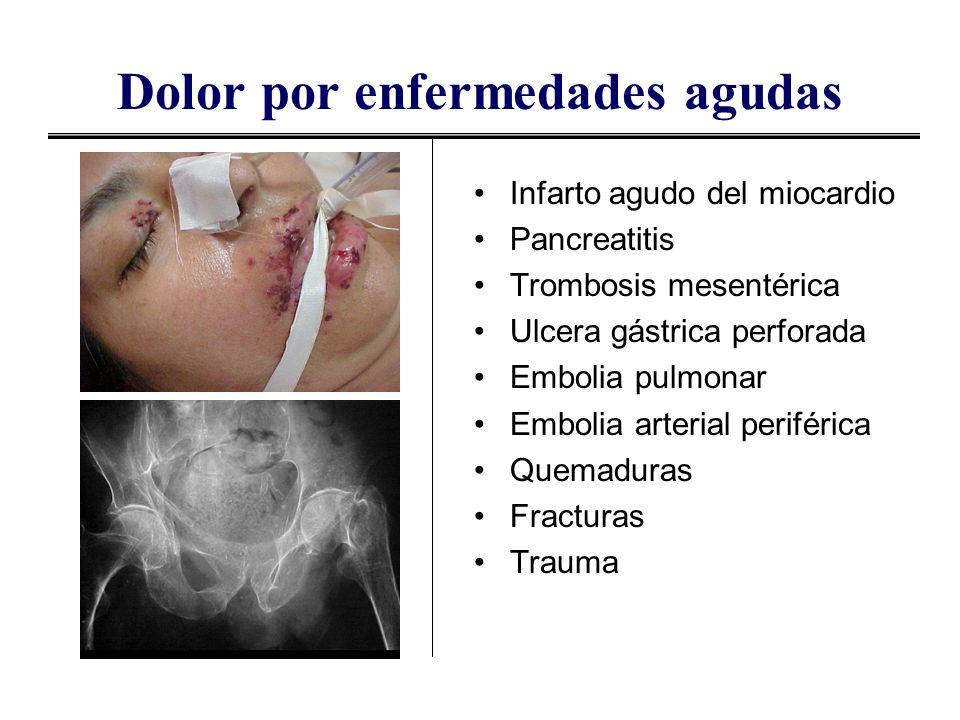 Dolor por enfermedades agudas Infarto agudo del miocardio Pancreatitis Trombosis mesentérica Ulcera gástrica perforada Embolia pulmonar Embolia arteri