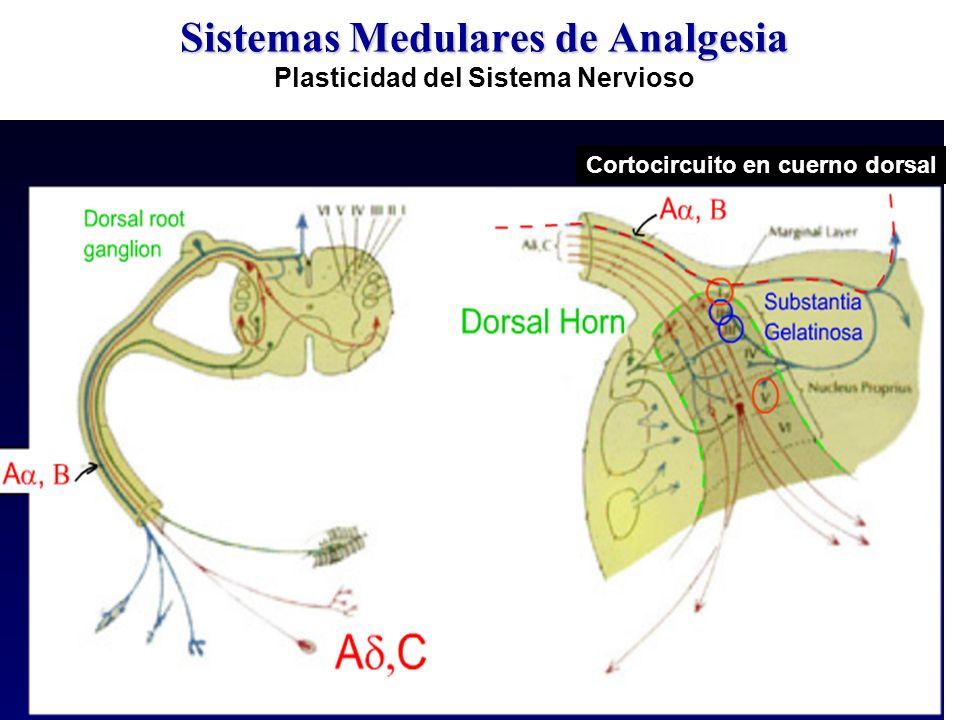 Sistemas Medulares de Analgesia Sistemas Medulares de Analgesia Plasticidad del Sistema Nervioso Cortocircuito en cuerno dorsal