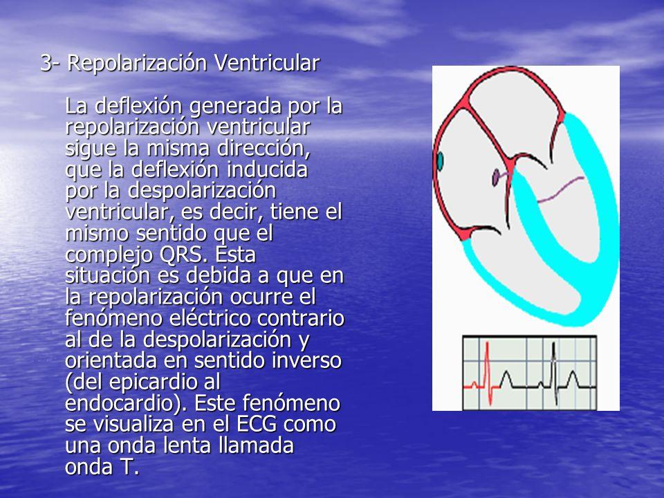 3- Repolarización Ventricular La deflexión generada por la repolarización ventricular sigue la misma dirección, que la deflexión inducida por la despolarización ventricular, es decir, tiene el mismo sentido que el complejo QRS.