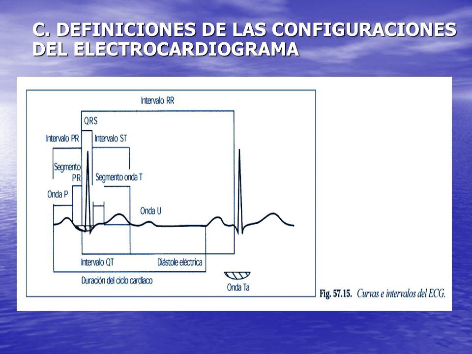 C. DEFINICIONES DE LAS CONFIGURACIONES DEL ELECTROCARDIOGRAMA