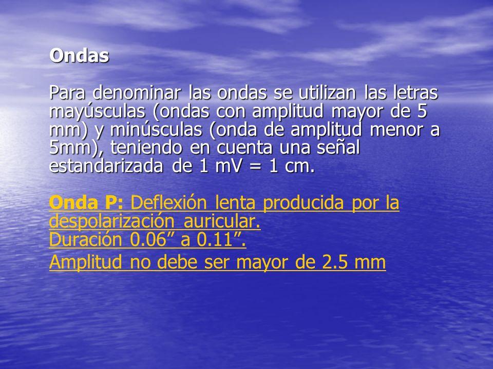 Ondas Para denominar las ondas se utilizan las letras mayúsculas (ondas con amplitud mayor de 5 mm) y minúsculas (onda de amplitud menor a 5mm), teniendo en cuenta una señal estandarizada de 1 mV = 1 cm.