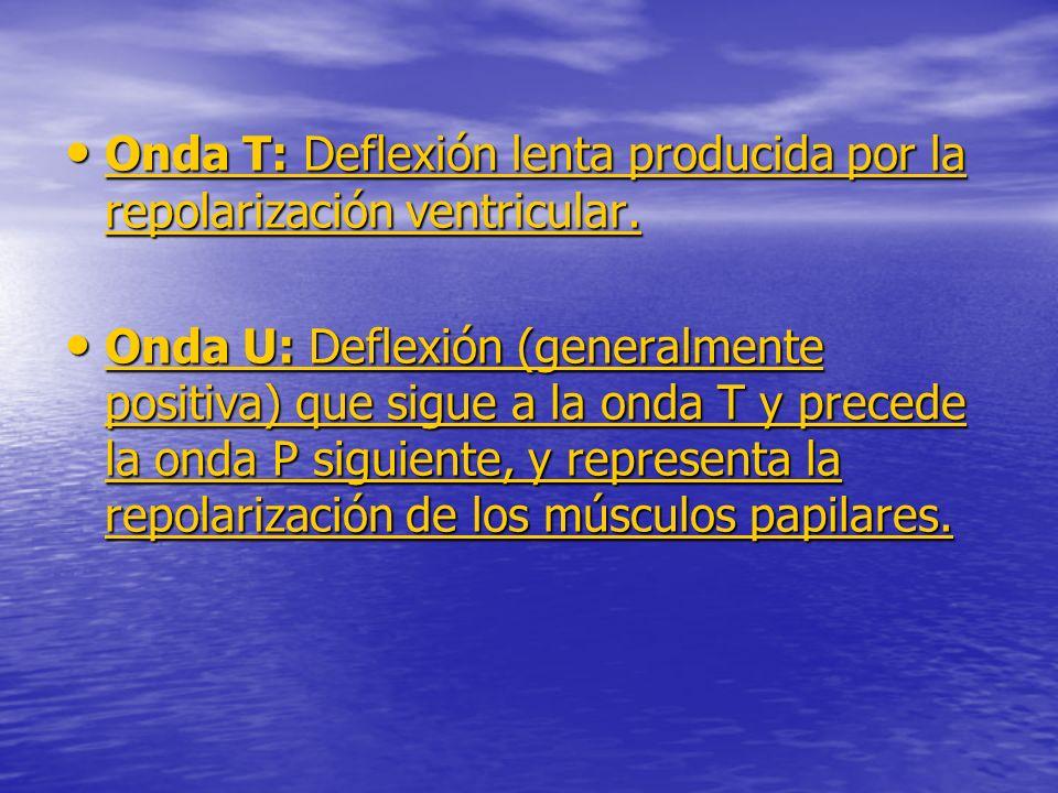 Onda T: Deflexión lenta producida por la repolarización ventricular.