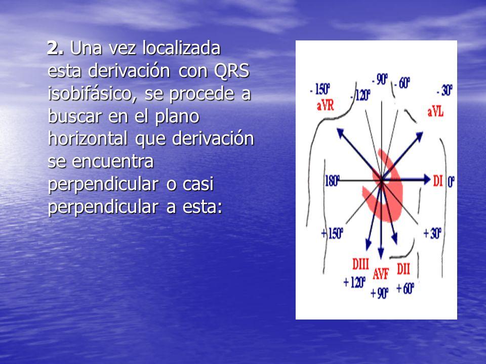 2. Una vez localizada esta derivación con QRS isobifásico, se procede a buscar en el plano horizontal que derivación se encuentra perpendicular o casi