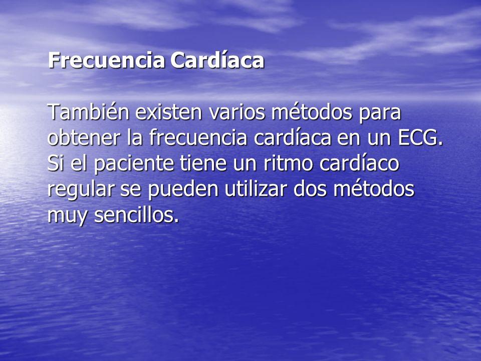 Frecuencia Cardíaca También existen varios métodos para obtener la frecuencia cardíaca en un ECG.