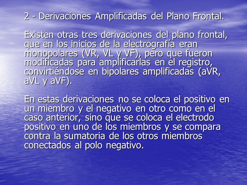2 - Derivaciones Amplificadas del Plano Frontal.