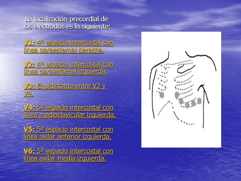 La localización precordial de los electrodos es la siguiente: La localización precordial de los electrodos es la siguiente: V1: 4º espacio intercostal con linea paraesternal derecha.