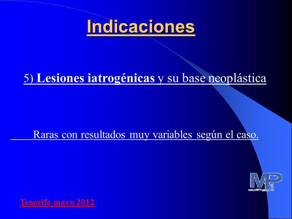 5) Lesiones iatrogénicas y su base neoplástica Raras con resultados muy variables según el caso.Indicaciones Tenerife mayo 2012